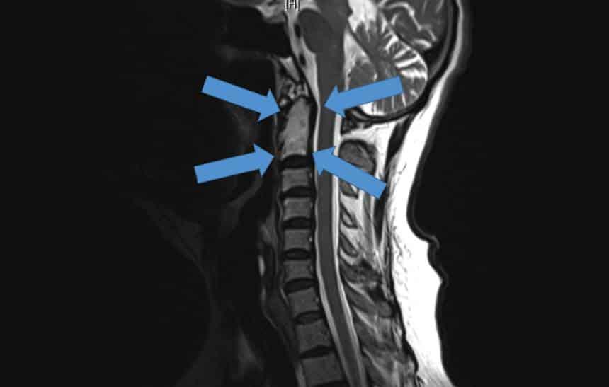 Cirurgia implanta vértebras impressas em 3D pela primeira vez