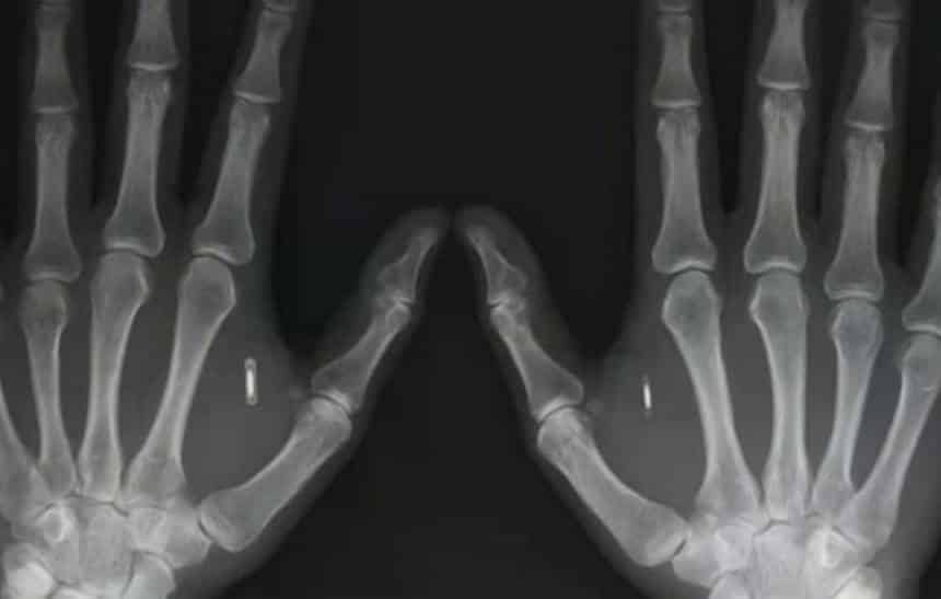 Est�dios de tatuagem oferecem implante de chip no dedo para destrancar portas