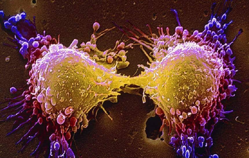 Inteligência artificial consegue detectar câncer colorretal com 86% de precisão