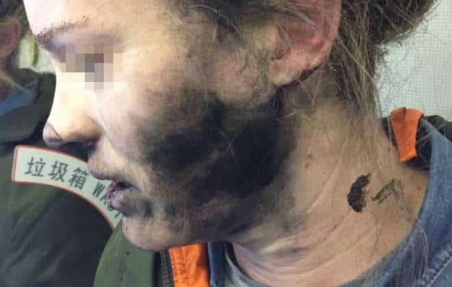Apple não ajudará mulher que teve o rosto queimado por explosão de fones Beats