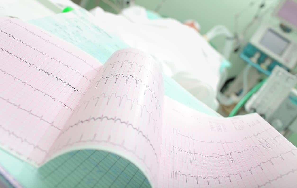 Pesquisa abre possibilidades para estudos de tratamentos de doenças como insuficiência cardíaca. Créditos: sudok1/iStock