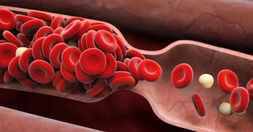 Covid-19: los científicos prueban un fármaco para prevenir los coágulos de  sangre - Olhar Digital